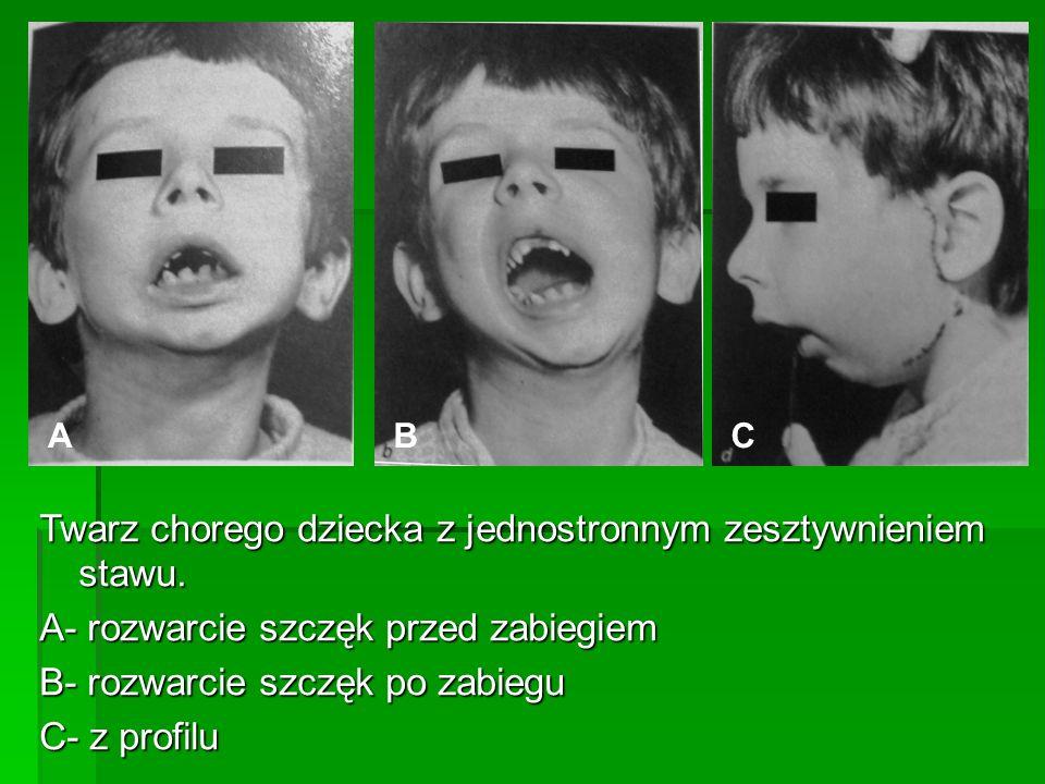 Twarz chorego dziecka z jednostronnym zesztywnieniem stawu. A- rozwarcie szczęk przed zabiegiem B- rozwarcie szczęk po zabiegu C- z profilu ACB