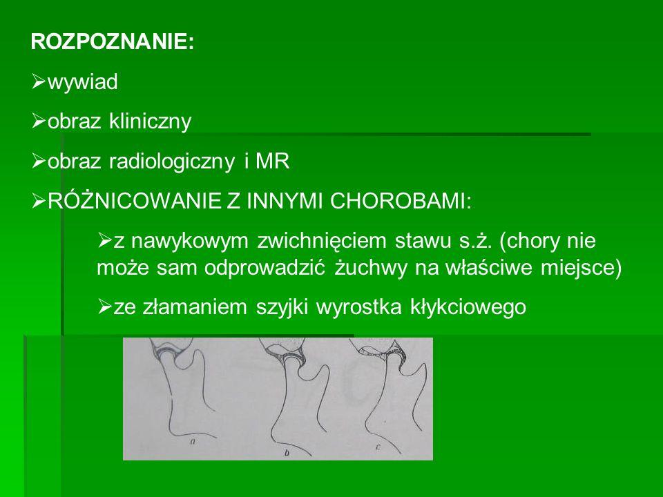 ROZPOZNANIE: wywiad obraz kliniczny obraz radiologiczny i MR RÓŻNICOWANIE Z INNYMI CHOROBAMI: z nawykowym zwichnięciem stawu s.ż. (chory nie może sam