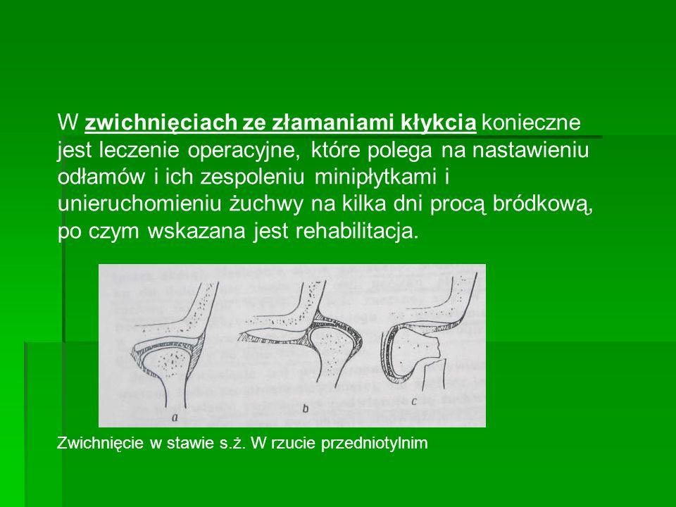 W zwichnięciach ze złamaniami kłykcia konieczne jest leczenie operacyjne, które polega na nastawieniu odłamów i ich zespoleniu minipłytkami i unieruch