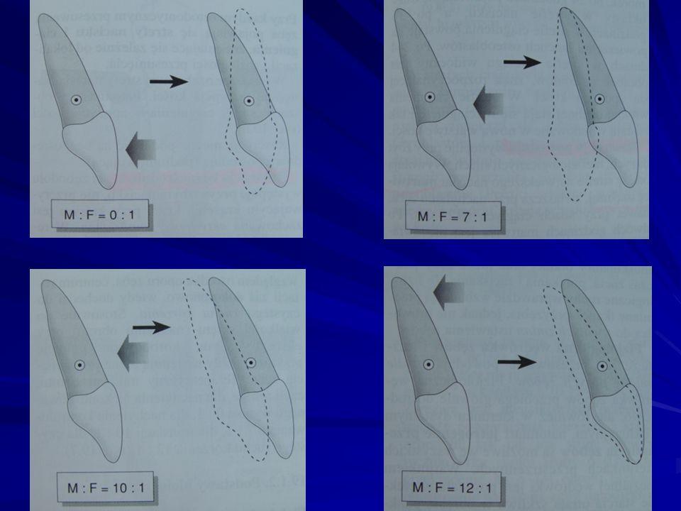 WARUNKI KORZYSTNE I NIEKORZYSTNE Dla ortodontycznego przemieszczenia zębów korzystny jest szeroki, wyrostek zębodołowy z grubą warstwą kości zbitej z
