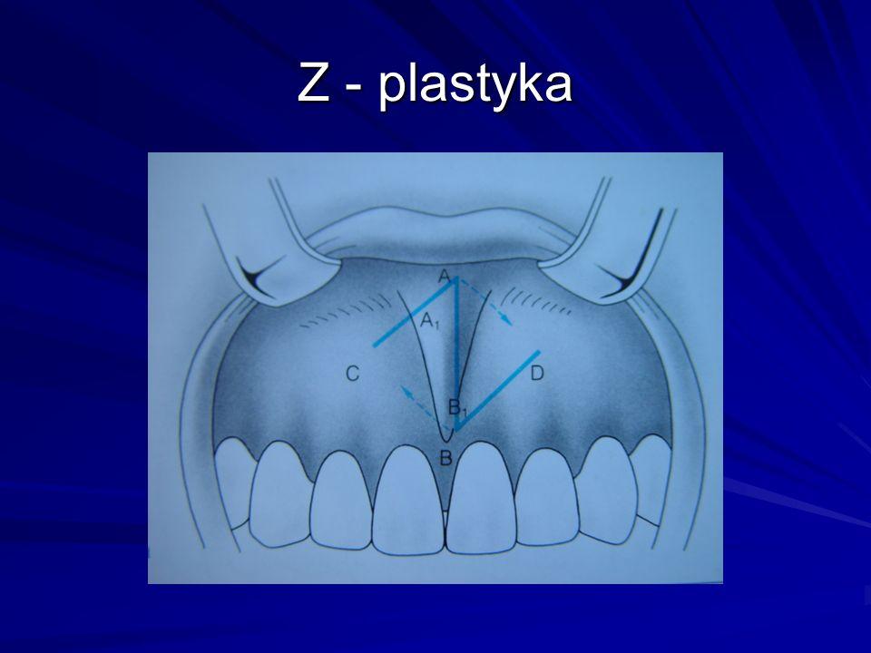 Frenulectomia