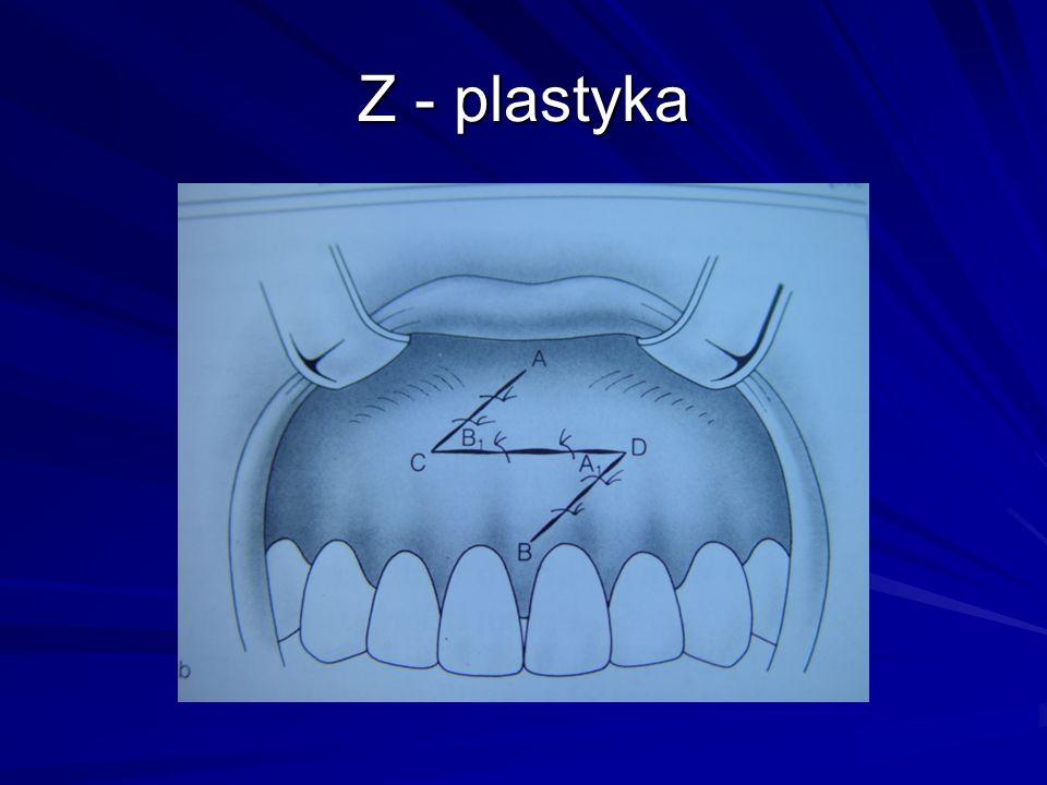 Z - plastyka