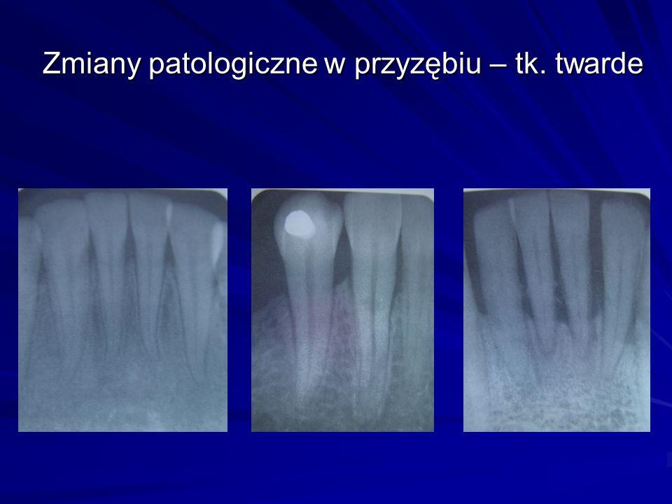 Orto-Perio Dla postępowania periodontologiczno-ortodontycznego wskazane jest staranne rozpoznanie kliniczno- radiologiczne w celu właściwej oceny tera