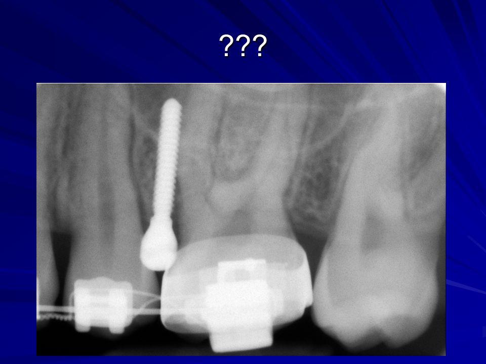 Orto-Perio Ogólne zasady leczenia pacjentów z ciężkimi powikłaniami periodontologicznymi w przypadku planowania i leczenia ortodontycznego powinny być