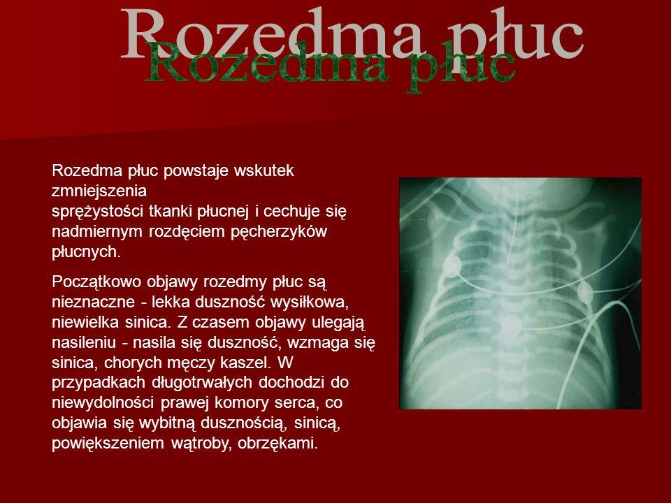 Rozedma płuc powstaje wskutek zmniejszenia sprężystości tkanki płucnej i cechuje się nadmiernym rozdęciem pęcherzyków płucnych.