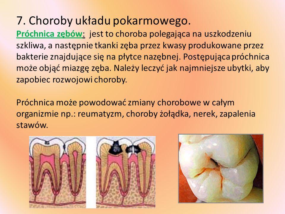 7. Choroby układu pokarmowego. Próchnica zębów: jest to choroba polegająca na uszkodzeniu szkliwa, a następnie tkanki zęba przez kwasy produkowane prz
