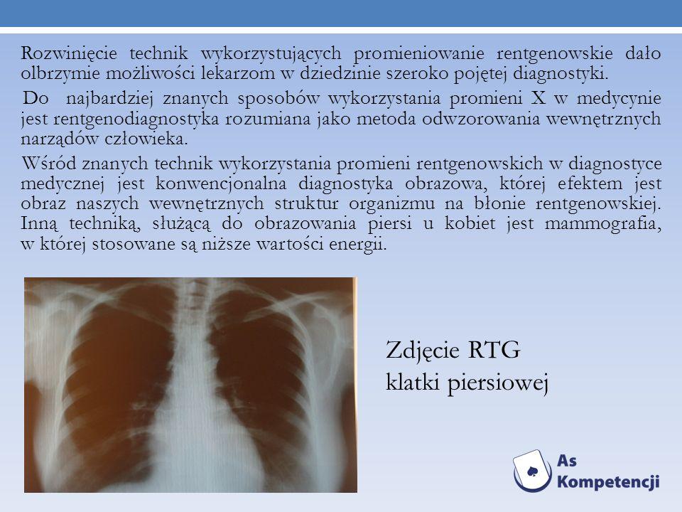 Rozwinięcie technik wykorzystujących promieniowanie rentgenowskie dało olbrzymie możliwości lekarzom w dziedzinie szeroko pojętej diagnostyki. Do najb
