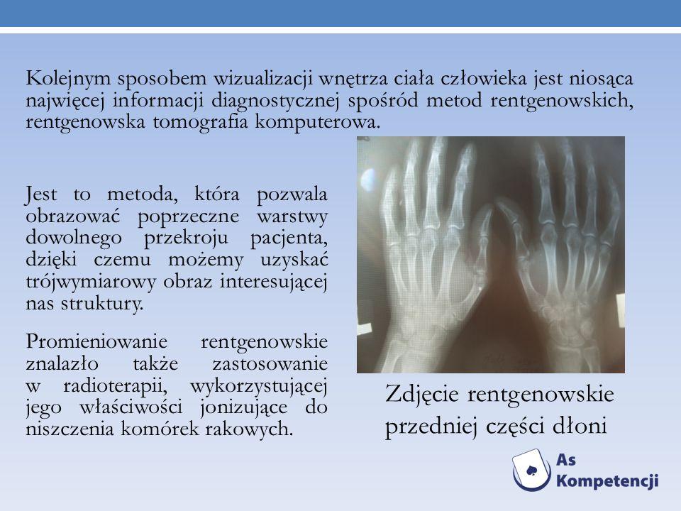 Jest to metoda, która pozwala obrazować poprzeczne warstwy dowolnego przekroju pacjenta, dzięki czemu możemy uzyskać trójwymiarowy obraz interesującej