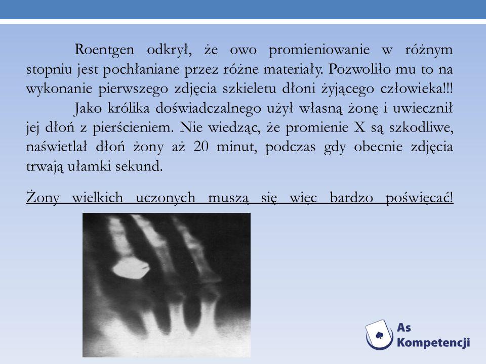 Roentgen odkrył, że owo promieniowanie w różnym stopniu jest pochłaniane przez różne materiały. Pozwoliło mu to na wykonanie pierwszego zdjęcia szkiel