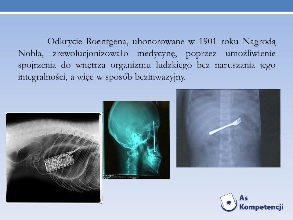 Odkrycie Roentgena, uhonorowane w 1901 roku Nagrodą Nobla, zrewolucjonizowało medycynę, poprzez umożliwienie spojrzenia do wnętrza organizmu ludzkiego