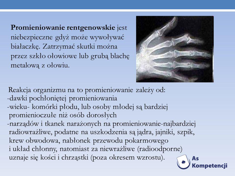 Reakcja organizmu na to promieniowanie zależy od: -dawki pochłoniętej promieniowania -wieku- komórki płodu, lub osoby młodej są bardziej promienioczuł