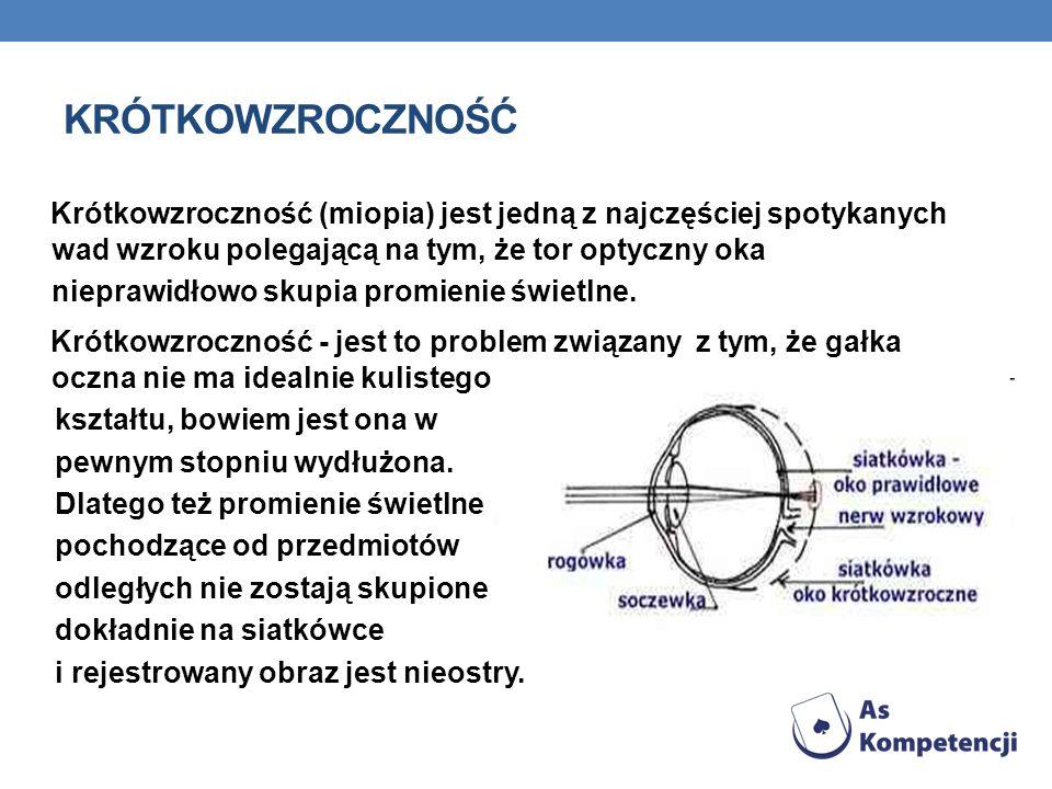 KRÓTKOWZROCZNOŚĆ Krótkowzroczność (miopia) jest jedną z najczęściej spotykanych wad wzroku polegającą na tym, że tor optyczny oka nieprawidłowo skupia