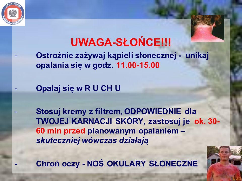UWAGA-SŁOŃCE!!! -Ostrożnie zażywaj kąpieli słonecznej - unikaj opalania się w godz. 11.00-15.00 -Opalaj się w R U CH U -Stosuj kremy z filtrem, ODPOWI