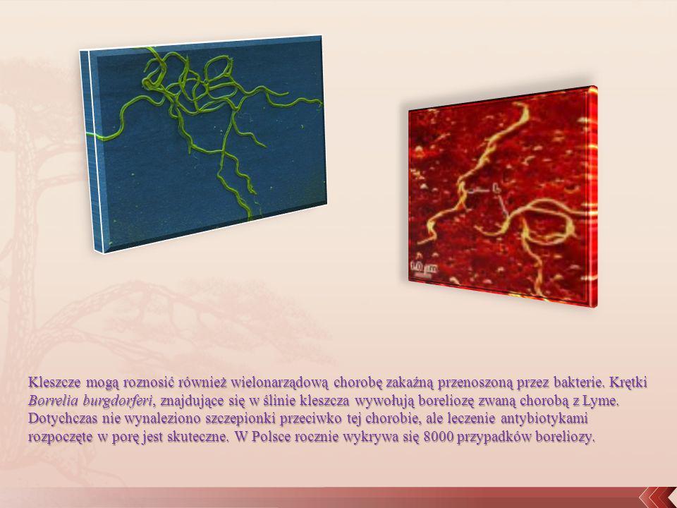 Kleszcze mogą roznosić również wielonarządową chorobę zakaźną przenoszoną przez bakterie. Krętki Borrelia burgdorferi, znajdujące się w ślinie kleszcz
