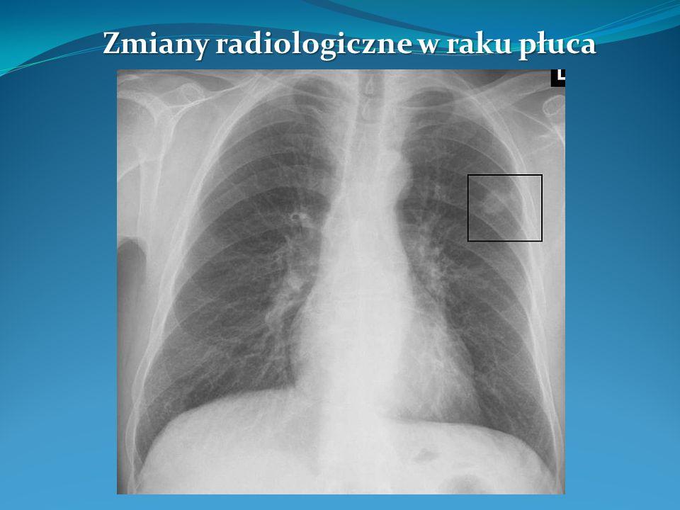 Zmiany radiologiczne w raku płuca