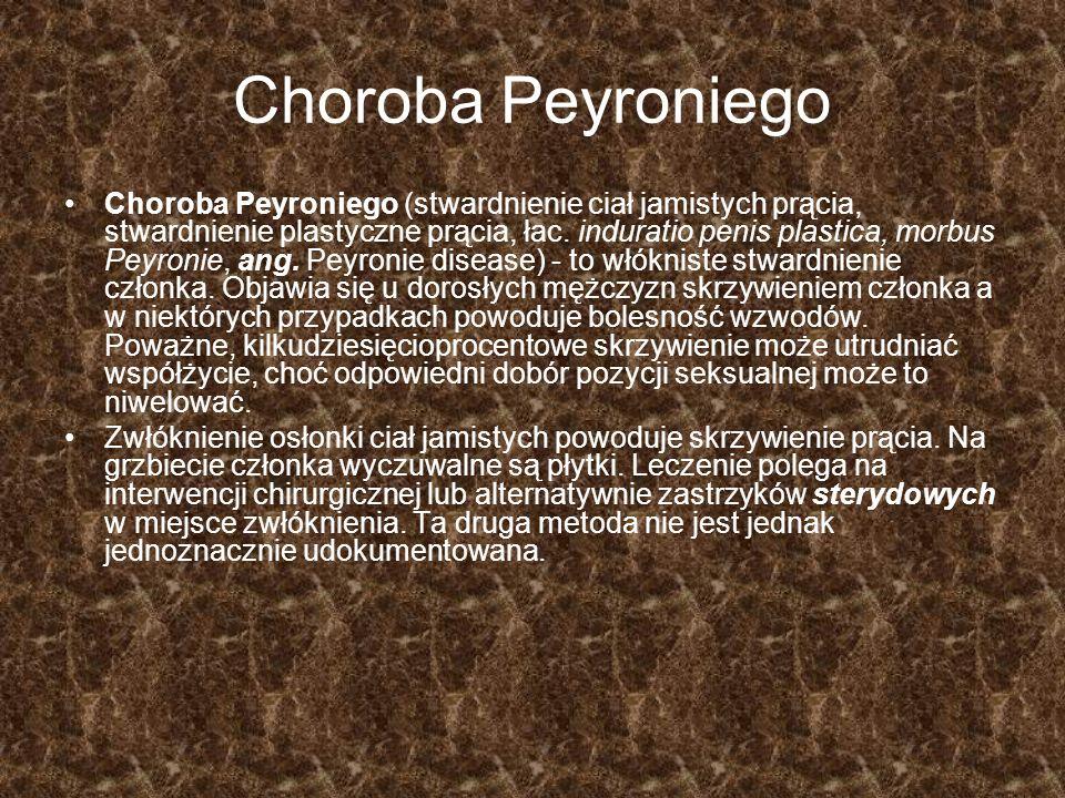 Choroba Peyroniego Choroba Peyroniego (stwardnienie ciał jamistych prącia, stwardnienie plastyczne prącia, łac. induratio penis plastica, morbus Peyro