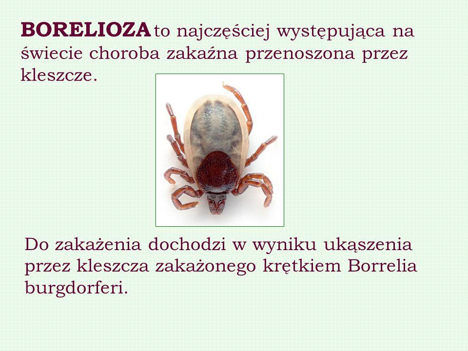 BORELIOZA to najczęściej występująca na świecie choroba zakaźna przenoszona przez kleszcze. Do zakażenia dochodzi w wyniku ukąszenia przez kleszcza za