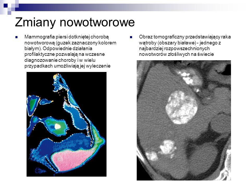 Zmiany nowotworowe Mammografia piersi dotkniętej chorobą nowotworową (guzek zaznaczony kolorem białym).
