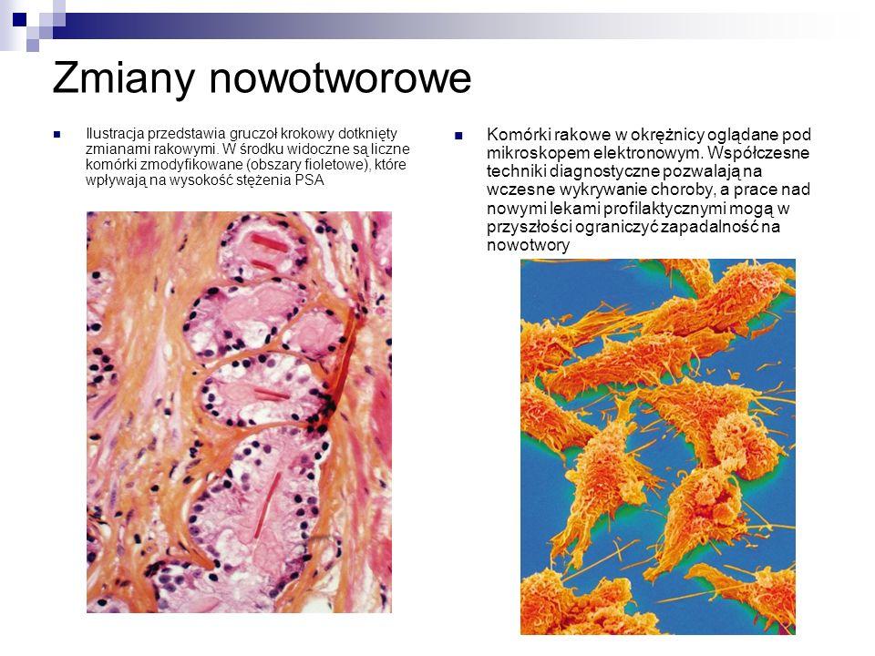Zmiany nowotworowe Ilustracja przedstawia gruczoł krokowy dotknięty zmianami rakowymi.
