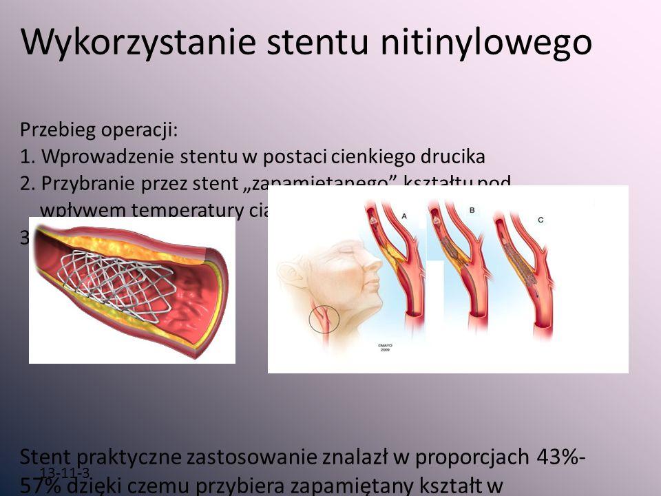 13-11-3 Wykorzystanie stentu nitinylowego Przebieg operacji: 1. Wprowadzenie stentu w postaci cienkiego drucika 2. Przybranie przez stent zapamiętaneg
