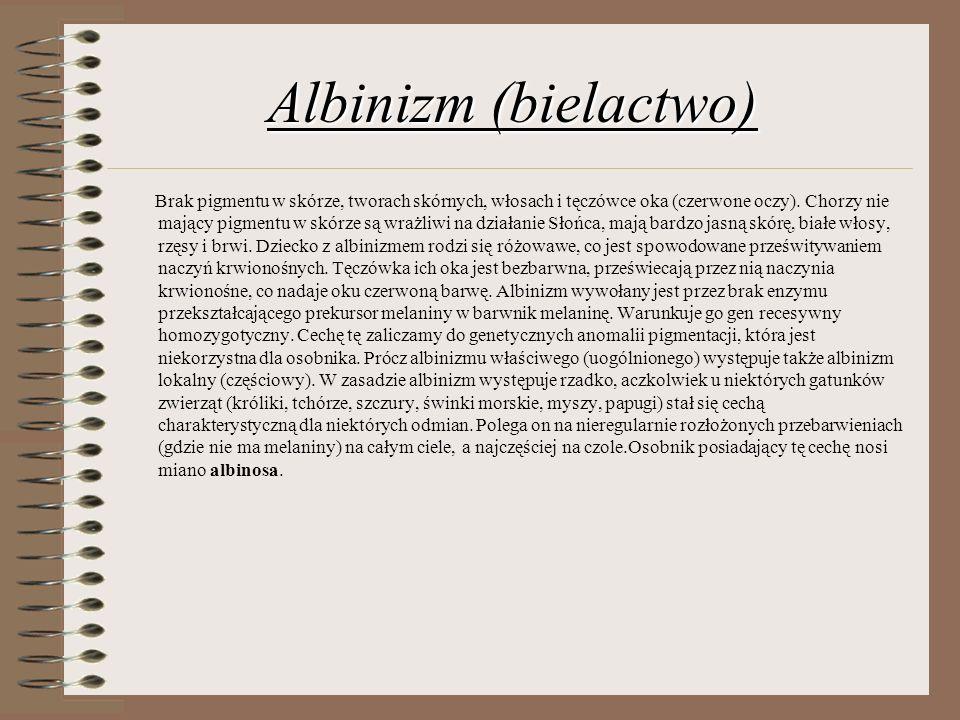 Albinizm (bielactwo) Brak pigmentu w skórze, tworach skórnych, włosach i tęczówce oka (czerwone oczy). Chorzy nie mający pigmentu w skórze są wrażliwi