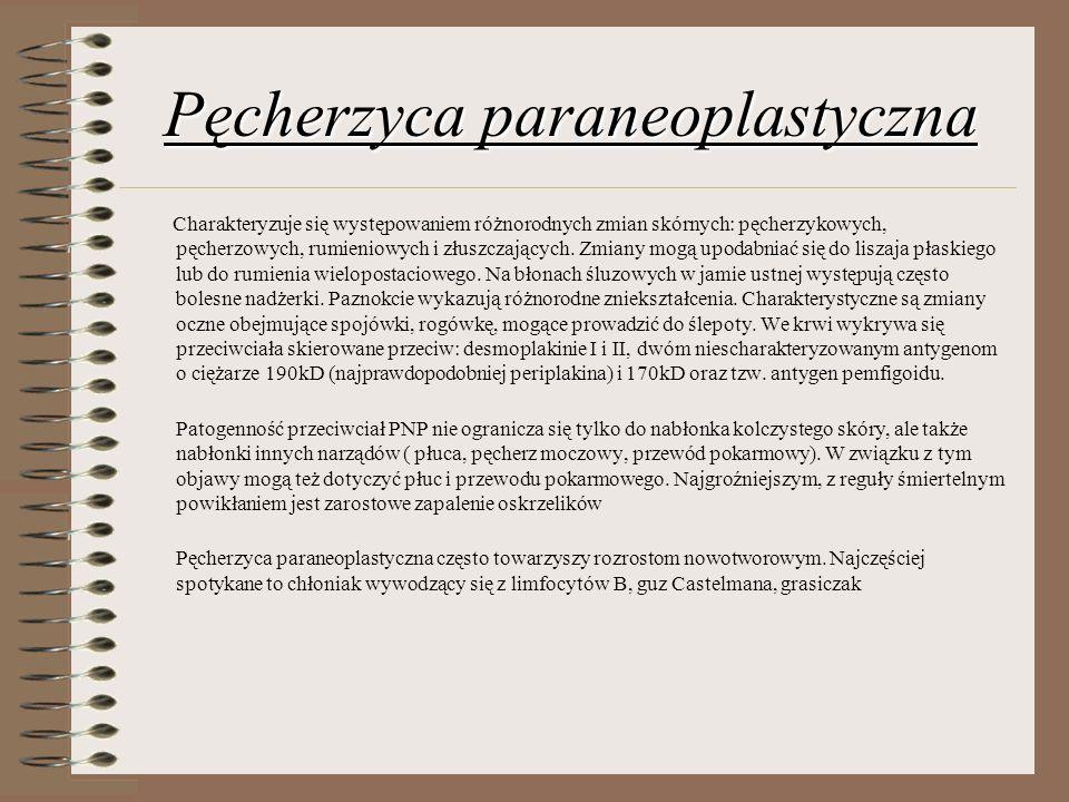 Pęcherzyca paraneoplastyczna Charakteryzuje się występowaniem różnorodnych zmian skórnych: pęcherzykowych, pęcherzowych, rumieniowych i złuszczających