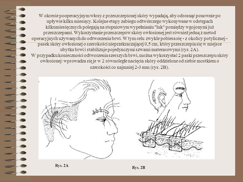 W okresie pooperacyjnym włosy z przeszczepionej skóry wypadają, aby odrosnąć ponownie po upływie kilku miesięcy. Kolejne etapy zabiegu odtwórczego wyk