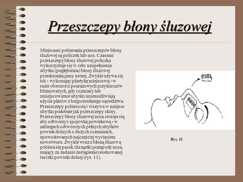 Przeszczepy błony śluzowej Miejscami pobierania przeszczepów błony śluzowej są policzek lub nos. Czasami przeszczepy błony śluzowej policzka wykorzyst