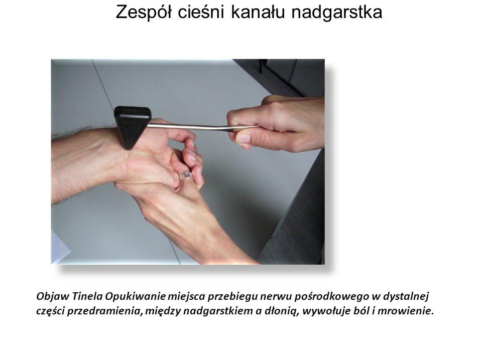 Objaw Tinela Opukiwanie miejsca przebiegu nerwu pośrodkowego w dystalnej części przedramienia, między nadgarstkiem a dłonią, wywołuje ból i mrowienie.