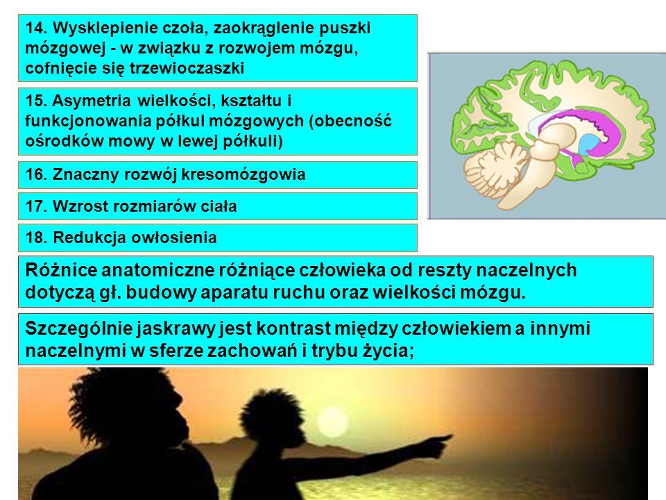 14. Wysklepienie czoła, zaokrąglenie puszki mózgowej - w związku z rozwojem mózgu, cofnięcie się trzewioczaszki 15. Asymetria wielkości, kształtu i fu