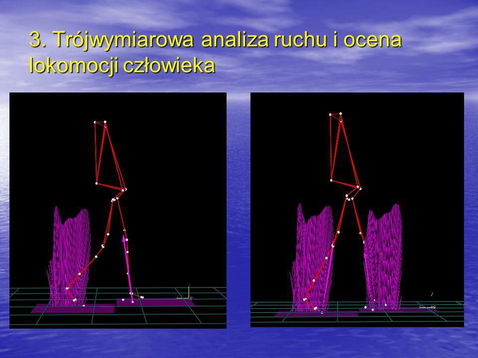 µVµV 4. Analiza aktywności elektrycznej mięśni szkieletowych