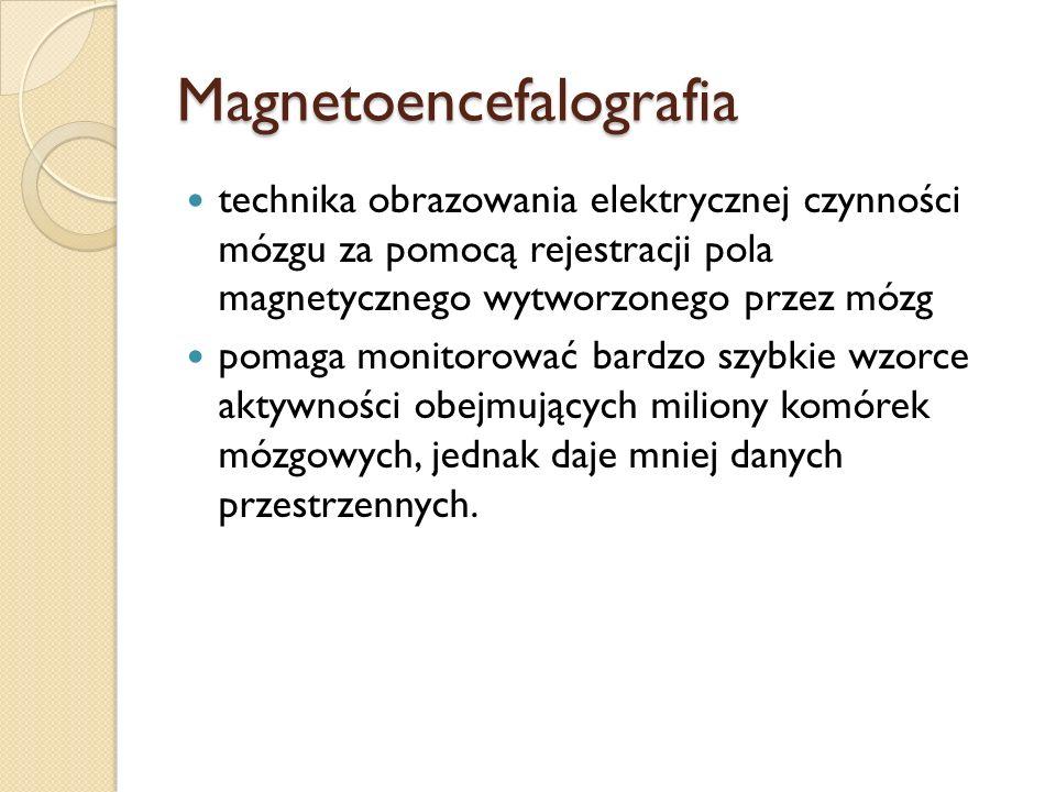 Magnetoencefalografia technika obrazowania elektrycznej czynności mózgu za pomocą rejestracji pola magnetycznego wytworzonego przez mózg pomaga monito