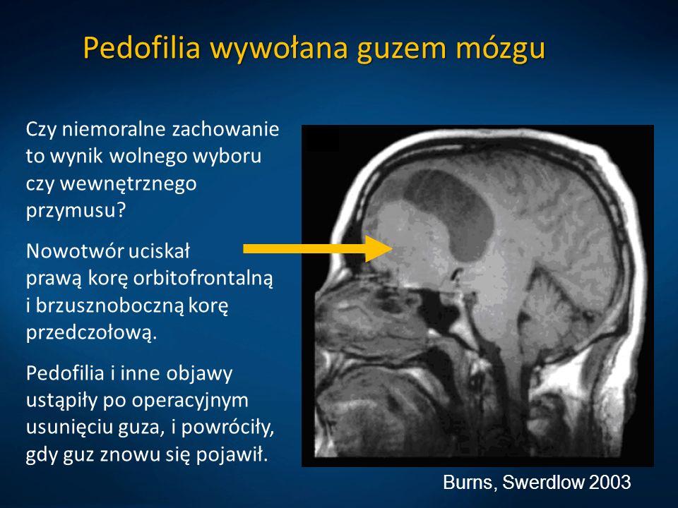 Burns, Swerdlow 2003 Pedofilia wywołana guzem mózgu Czy niemoralne zachowanie to wynik wolnego wyboru czy wewnętrznego przymusu? Nowotwór uciskał praw