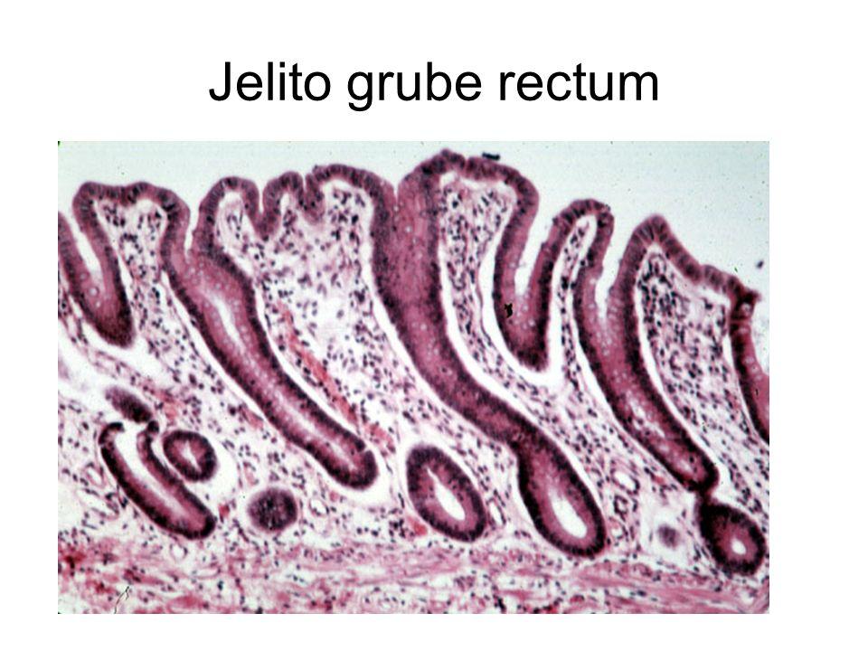 Jelito grube rectum