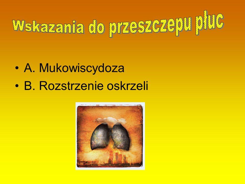 A. Mukowiscydoza B. Rozstrzenie oskrzeli