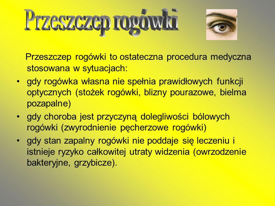 Przeszczep rogówki to ostateczna procedura medyczna stosowana w sytuacjach: gdy rogówka własna nie spełnia prawidłowych funkcji optycznych (stożek rog
