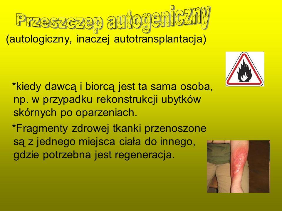 (autologiczny, inaczej autotransplantacja) *kiedy dawcą i biorcą jest ta sama osoba, np. w przypadku rekonstrukcji ubytków skórnych po oparzeniach. *F