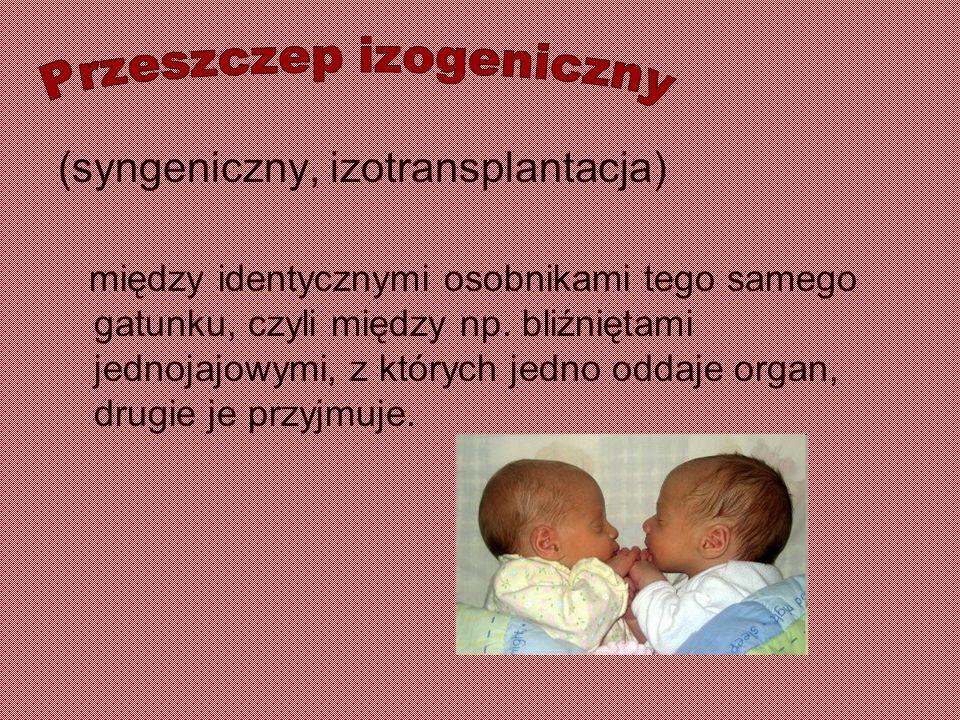 (syngeniczny, izotransplantacja) między identycznymi osobnikami tego samego gatunku, czyli między np. bliźniętami jednojajowymi, z których jedno oddaj