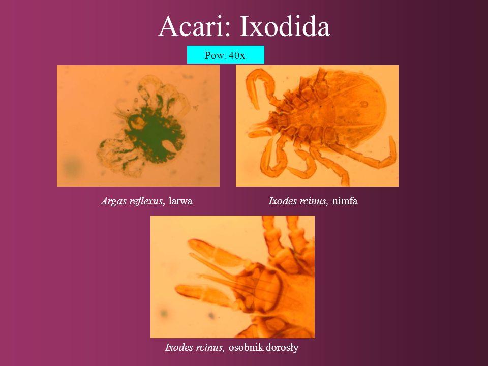 Acari: Ixodida Dermacentor reticulatus, larwa Pow. 40x
