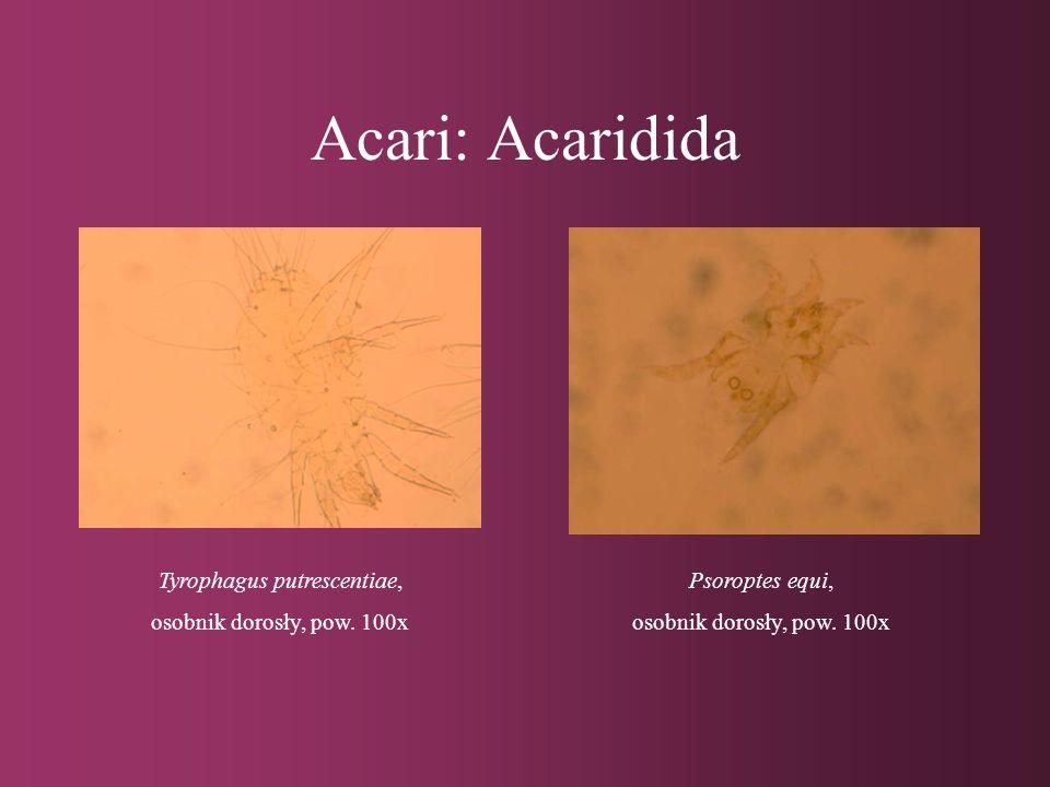 Insecta: Diptera: Anopheles sp., larwa Przednia część ciałaTylna część ciała Pow. 40x
