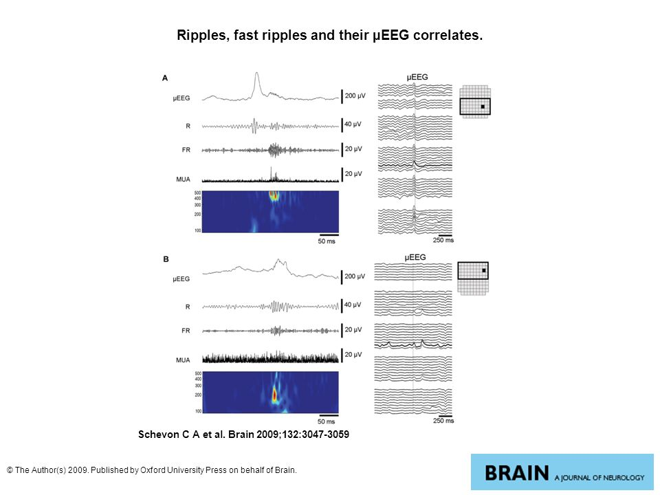 Ripples, fast ripples and their µEEG correlates. Schevon C A et al. Brain 2009;132:3047-3059 © The Author(s) 2009. Published by Oxford University Pres
