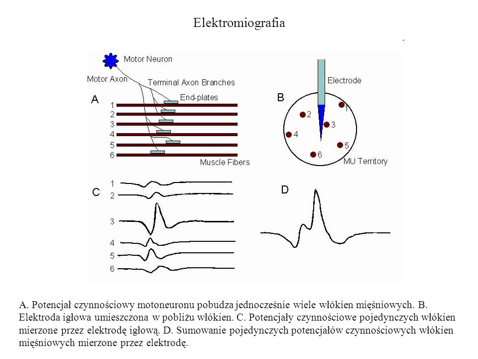 Elektromiografia A. Potencjał czynnościowy motoneuronu pobudza jednocześnie wiele włókien mięśniowych. B. Elektroda igłowa umieszczona w pobliżu włóki