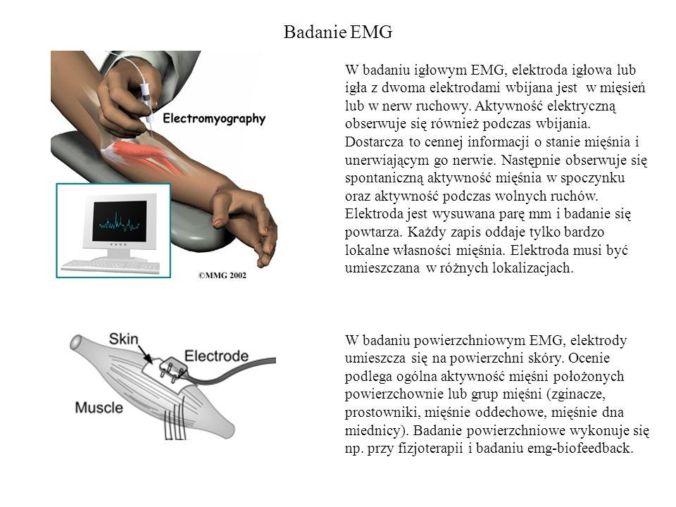 Badanie EMG W badaniu igłowym EMG, elektroda igłowa lub igła z dwoma elektrodami wbijana jest w mięsień lub w nerw ruchowy. Aktywność elektryczną obse