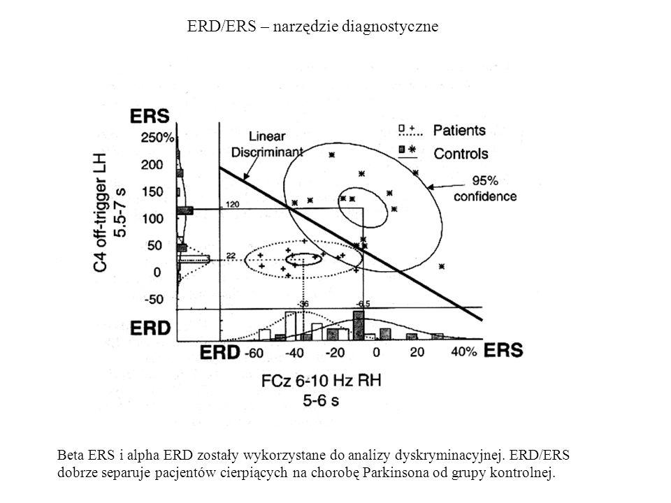 ERD/ERS – narzędzie diagnostyczne Beta ERS i alpha ERD zostały wykorzystane do analizy dyskryminacyjnej. ERD/ERS dobrze separuje pacjentów cierpiących