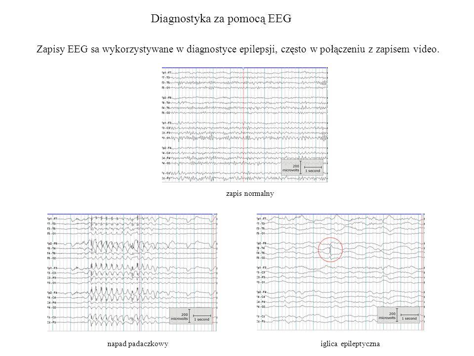Diagnostyka za pomocą EEG Zapisy EEG sa wykorzystywane w diagnostyce epilepsji, często w połączeniu z zapisem video. zapis normalny napad padaczkowyig