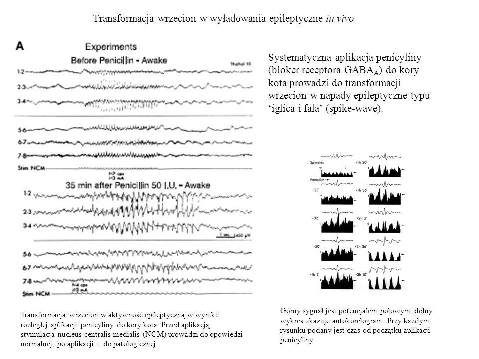 Transformacja wrzecion w wyładowania epileptyczne in vivo Systematyczna aplikacja penicyliny (bloker receptora GABA A ) do kory kota prowadzi do trans