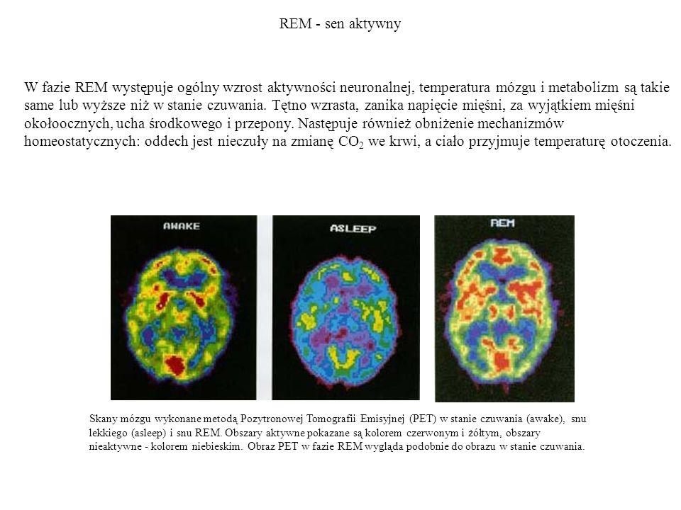 REM - sen aktywny Skany mózgu wykonane metodą Pozytronowej Tomografii Emisyjnej (PET) w stanie czuwania (awake), snu lekkiego (asleep) i snu REM. Obsz