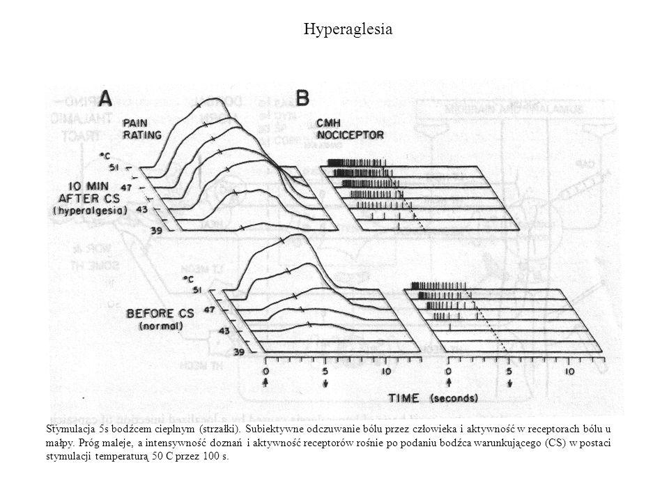 Hyperaglesia Stymulacja 5s bodźcem cieplnym (strzałki). Subiektywne odczuwanie bólu przez człowieka i aktywność w receptorach bólu u małpy. Próg malej