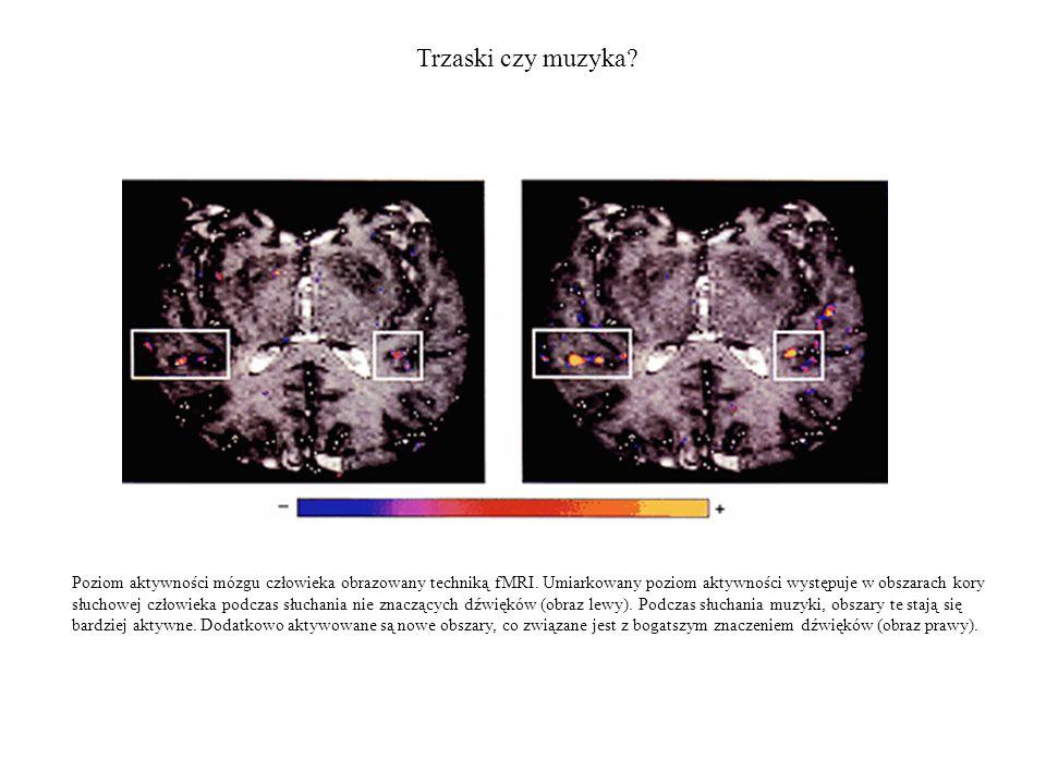 Trzaski czy muzyka? Poziom aktywności mózgu człowieka obrazowany techniką fMRI. Umiarkowany poziom aktywności występuje w obszarach kory słuchowej czł
