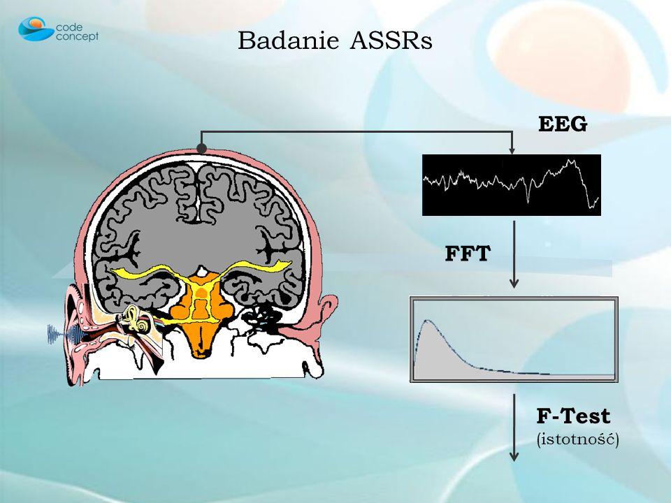 Badanie ASSRs FFT EEG F-Test (istotność)